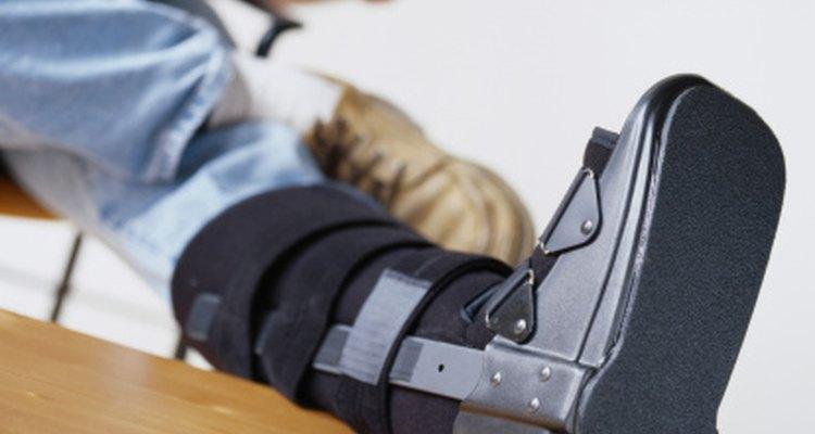 Puede que necesites usar una bota de caminar o yeso durante parte de tu rehabilitación.