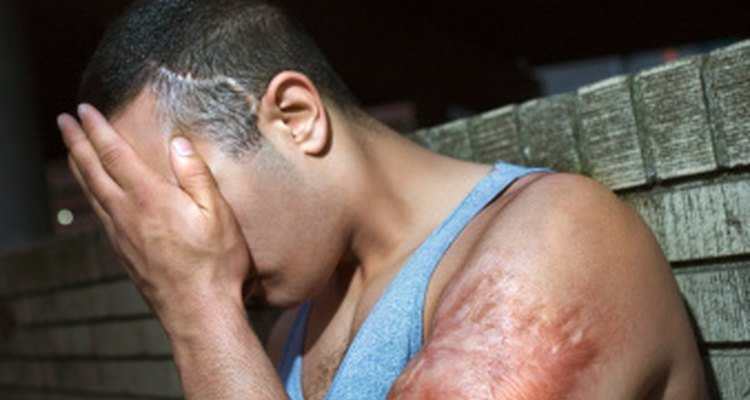 Los moretones sin explicación pueden ser una señal o una afección médica subyacente.
