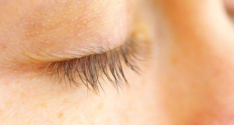 Frotar tus ojos con las manos sucias puede producir orzuelos.