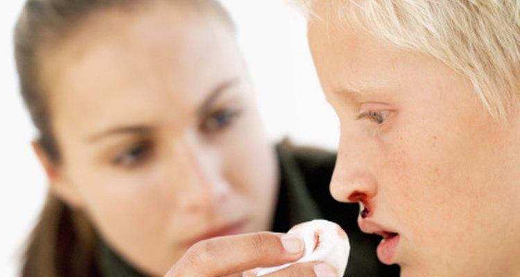 El sangrado nasal recurrente es un síntoma de síndrome de plaquetas gigantes o SB-S.