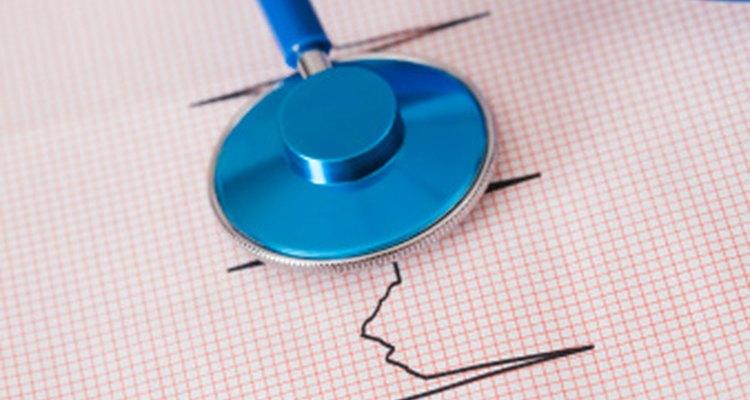 Una pulso cardíaco normal es de entre 60 y 90 latidos por minuto.