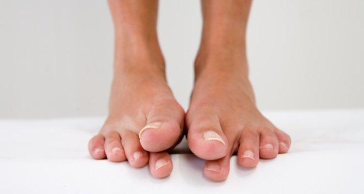 Las lesiones en el dedo gordo del pie pueden limitar el rango de movimiento.
