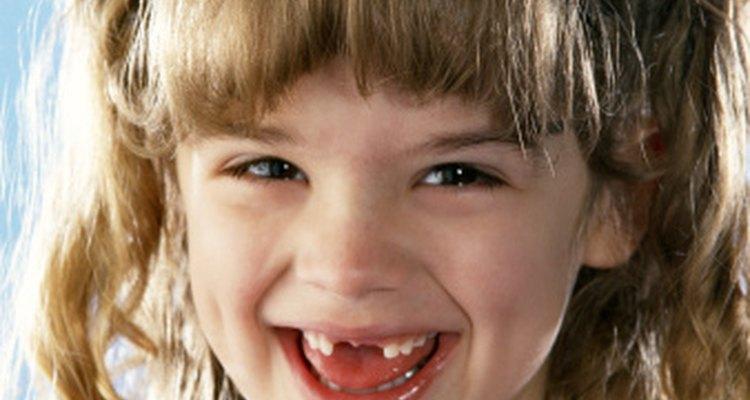 Las dentaduras parciales de acrílico se usan para rellenar agujeros temporalmente.