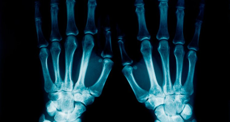 Los rayos X se utilizan para diagnosticar los problemas internos.