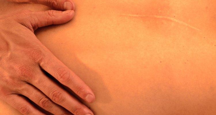 hay muchas formas de reducir la tonalidad rojiza de alrededor de una cicatriz