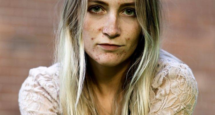 Produtos de máscara de enxofre podem tratar a acne de leve a moderada