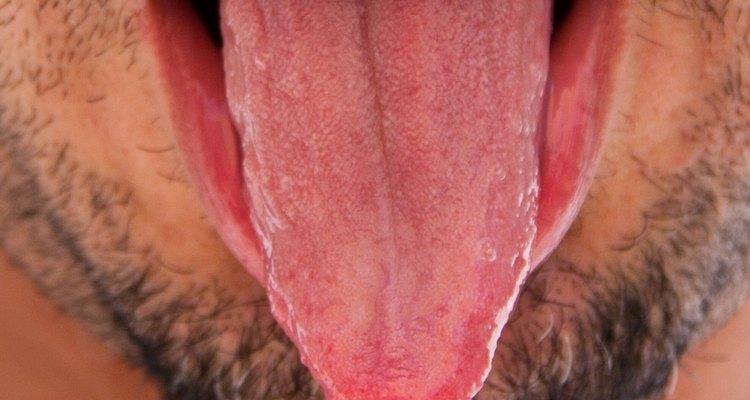 Uma papila gustativa fica irritada e aparece como um inchaço branco ou vermelho na língua