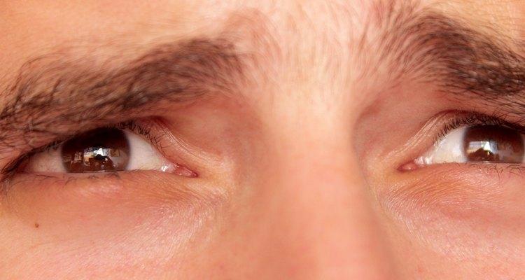 Ojos hinchados.