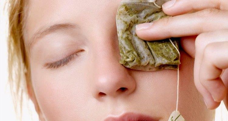Los taninos en el té pueden ayudarte a desinflamar tus ojos.