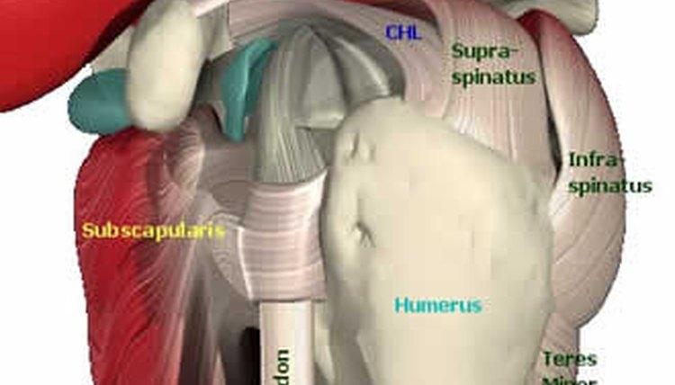 Exercises for Rotator Cuff Tendinitis