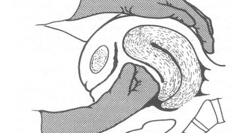 Fundal Massage for Uterine Atony