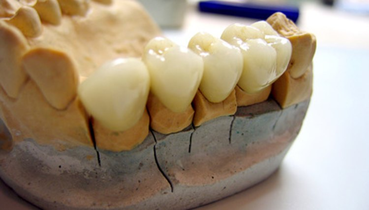 Many schools in the United States offer programs in dental lab technology