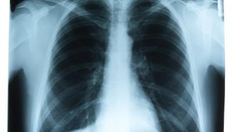 Pneumonia may cause a discontinuous sound.