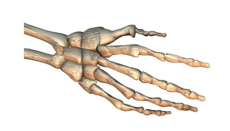 The acutrak screw holds carpal wrist bone fractures.
