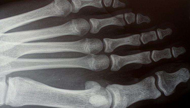 The Herbert screw is used to hold small fractured bones as in feet and hands.