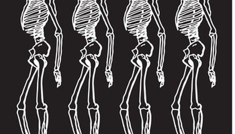 Surgical screws hold bones together.