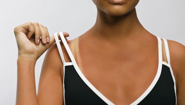 Shoulder straps are often tan line culprits.