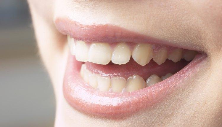 Dicas Caseiras Para Deixar Os Dentes Mais Brancos E Brilhantes