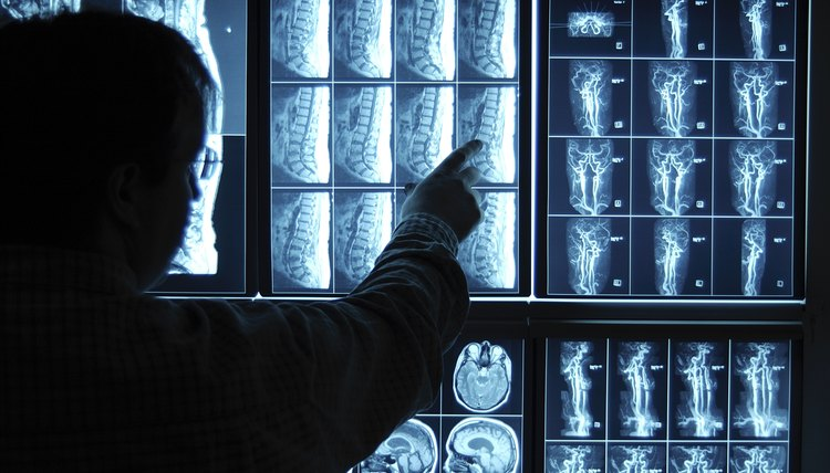 Doctor Pointing To X-Ray Images On Computer Screen