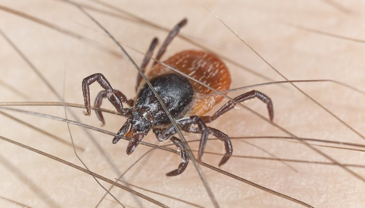 Tick feeding on human, extreme close up with high magnification