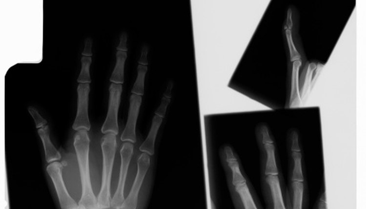 How to Break Fingers for Self Defense