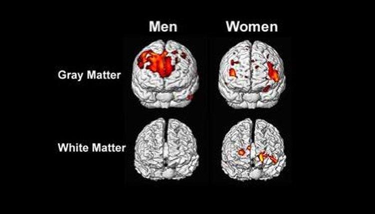 Brain activity also differs between men and women