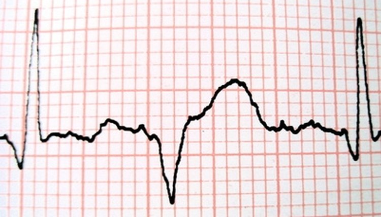 High school students can experiment to determine how listening to a heartbeat affects their own heartbeats.