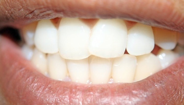 Each person has different teeth impressions.