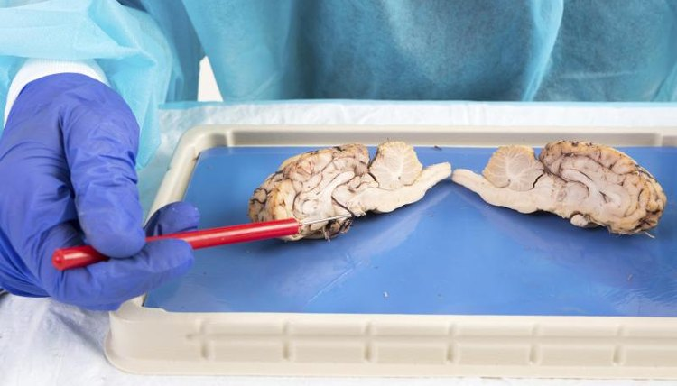 A neuroscience student dissects brain tissue in a lab