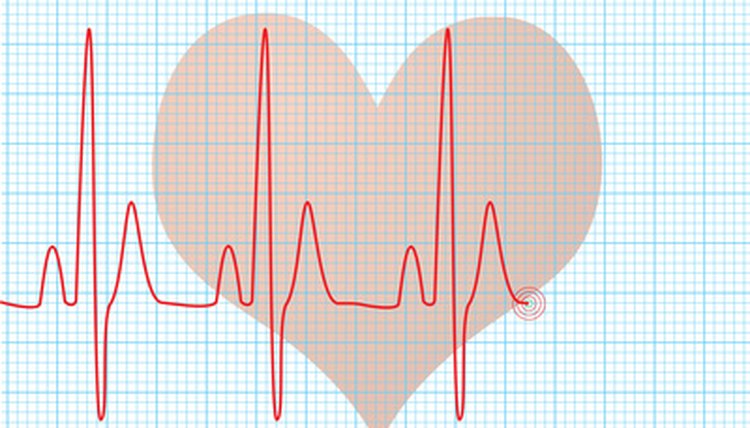 Factors That Influence Stroke Volume & Heart Rate