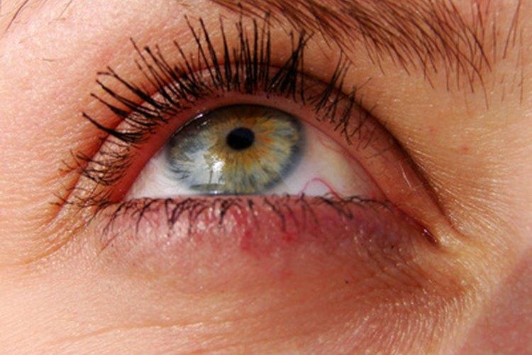 Alergia alrededor de los ojos