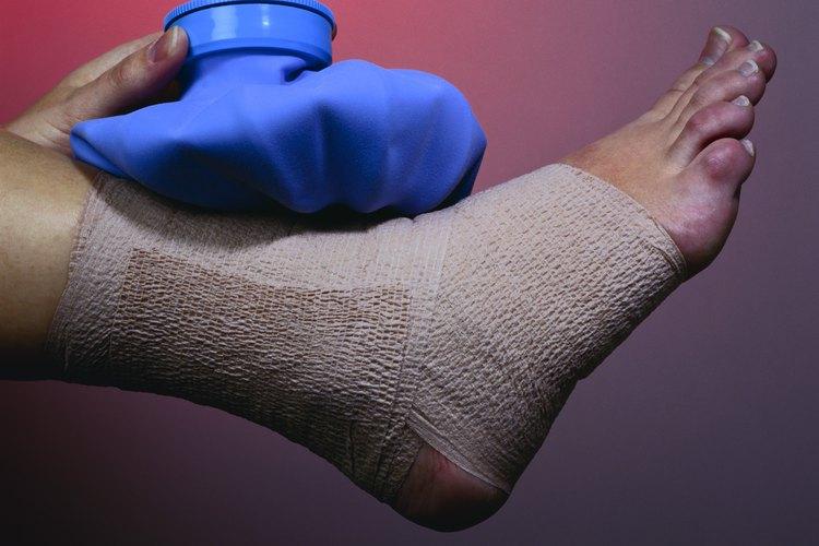 Cuidados en el hogar de un esguince de tobillo - Muy Fitness