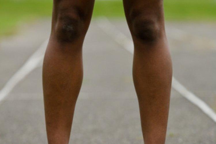 Vena inflamada pierna izquierda
