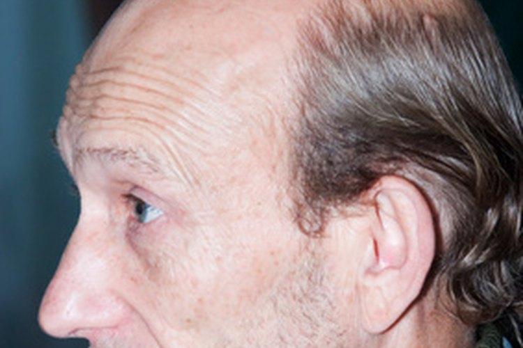 La calvicie no es incurable o algo sin esperanza; prueba este simple proceso para mantener tu pelo.