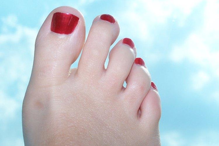 Las uñas rajadas se pueden emparchar y luego pintar de modo que la rajadura quede invisible.