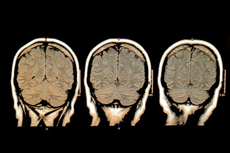 El tamaño de la cavidad cerebral dicta la inteligencia.