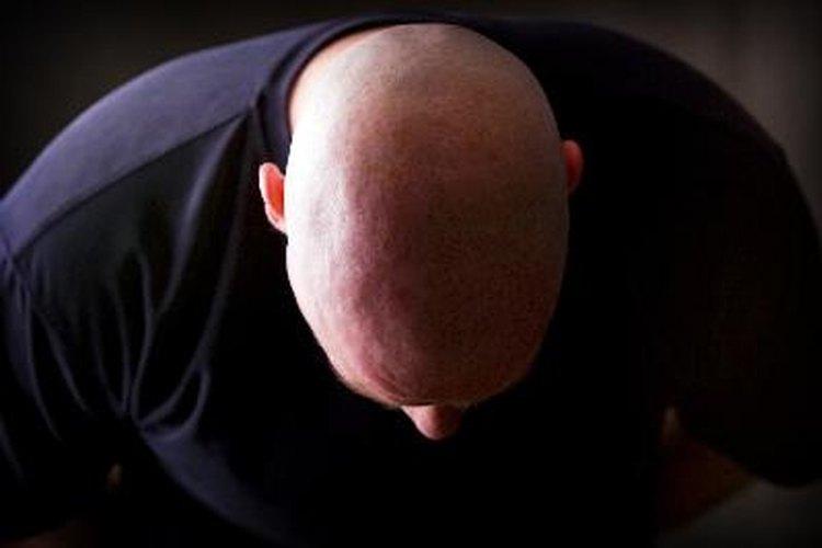 ¿Qué champús ayudan a quitar la DHT del cuero cabelludo?
