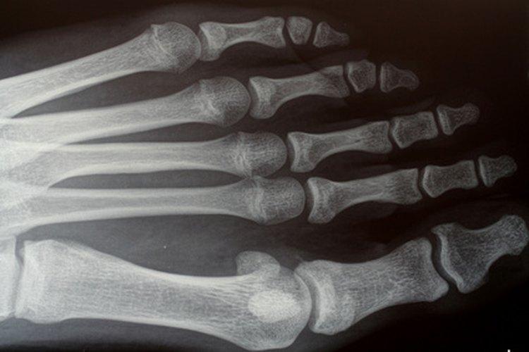 Una corbata con una imagen de rayos X le dará un toque de fantasía a la vida de tu médico.