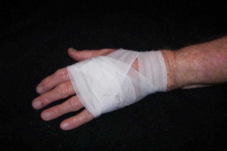Una cotorra agresiva puede causar lesiones.