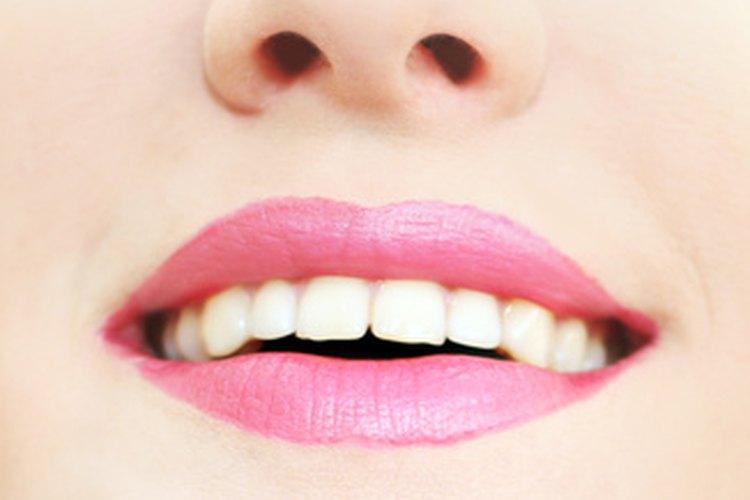 La esmaltoplastia se usa para dar forma a los dientes, haciéndolos más pequeños y suavizando los bordes no uniformes.