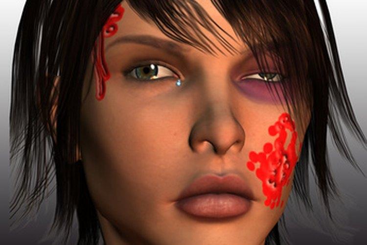 Representación gráfica de una víctima de violencia de género.