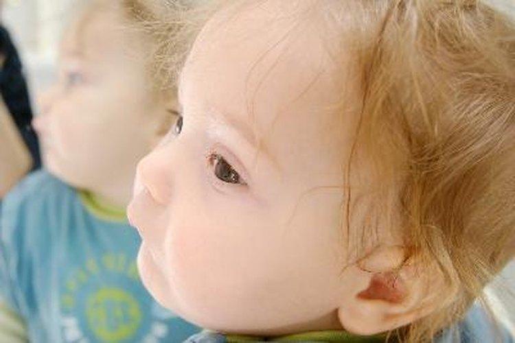 Las marcas de nacimiento pueden desaparecer a medida que el bebé crece.