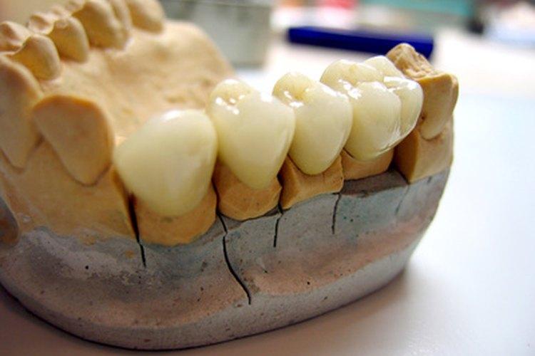 La mandíbula de un cráneo humano.