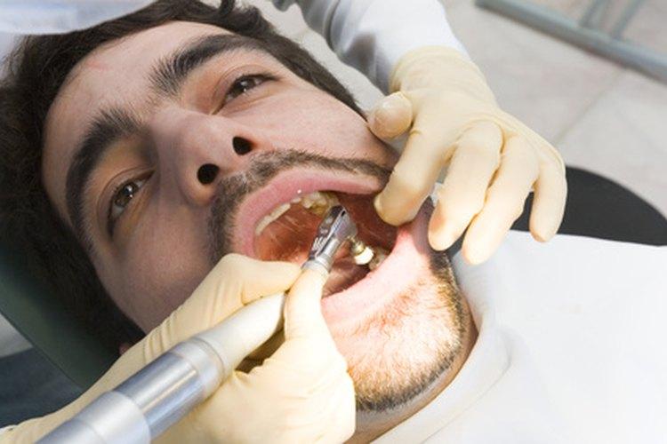 Los higienistas dentales tienen un trabajo importante.