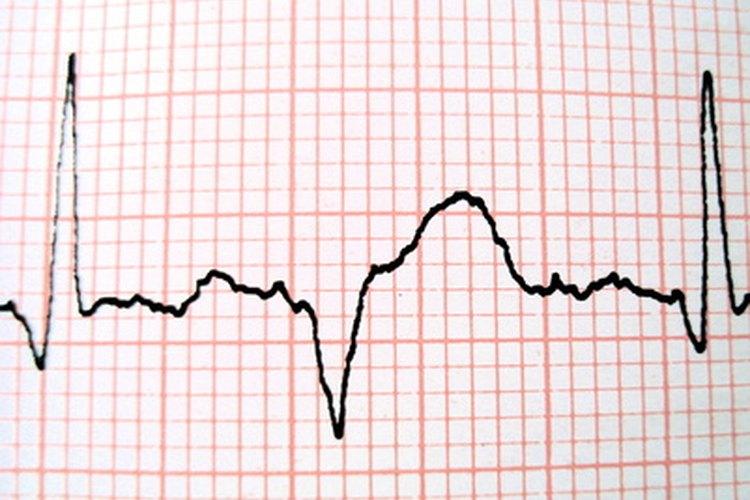 El ritmo cardíaco puede acelerarse en algunos casos.
