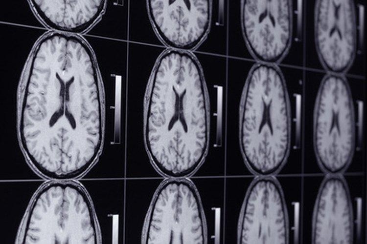 Los técnicos de rayos X pueden aumentar sus ingresos especializándose en áreas como la resonancia magnética.