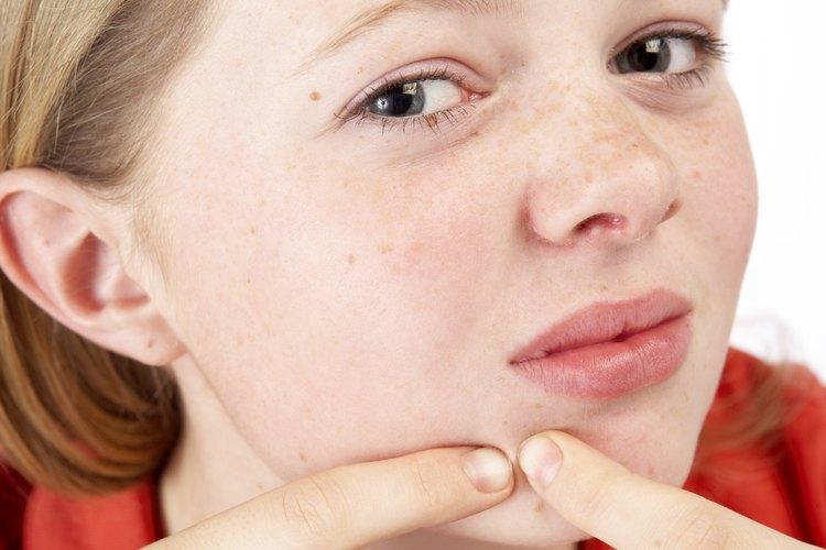 Las almendras reducen la inflamación que provoca el acné.