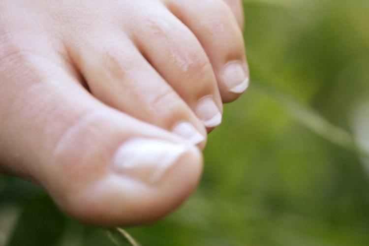 Cómo hacer tus propios separadores de dedos del pie  