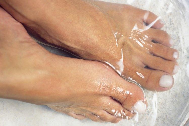 Remojar los dedos en sales de Epsom puede estimular la curación.