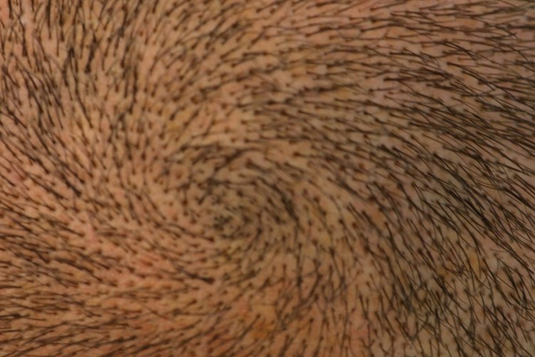 El tratamiento Nioxin para el cuero cabelludo.